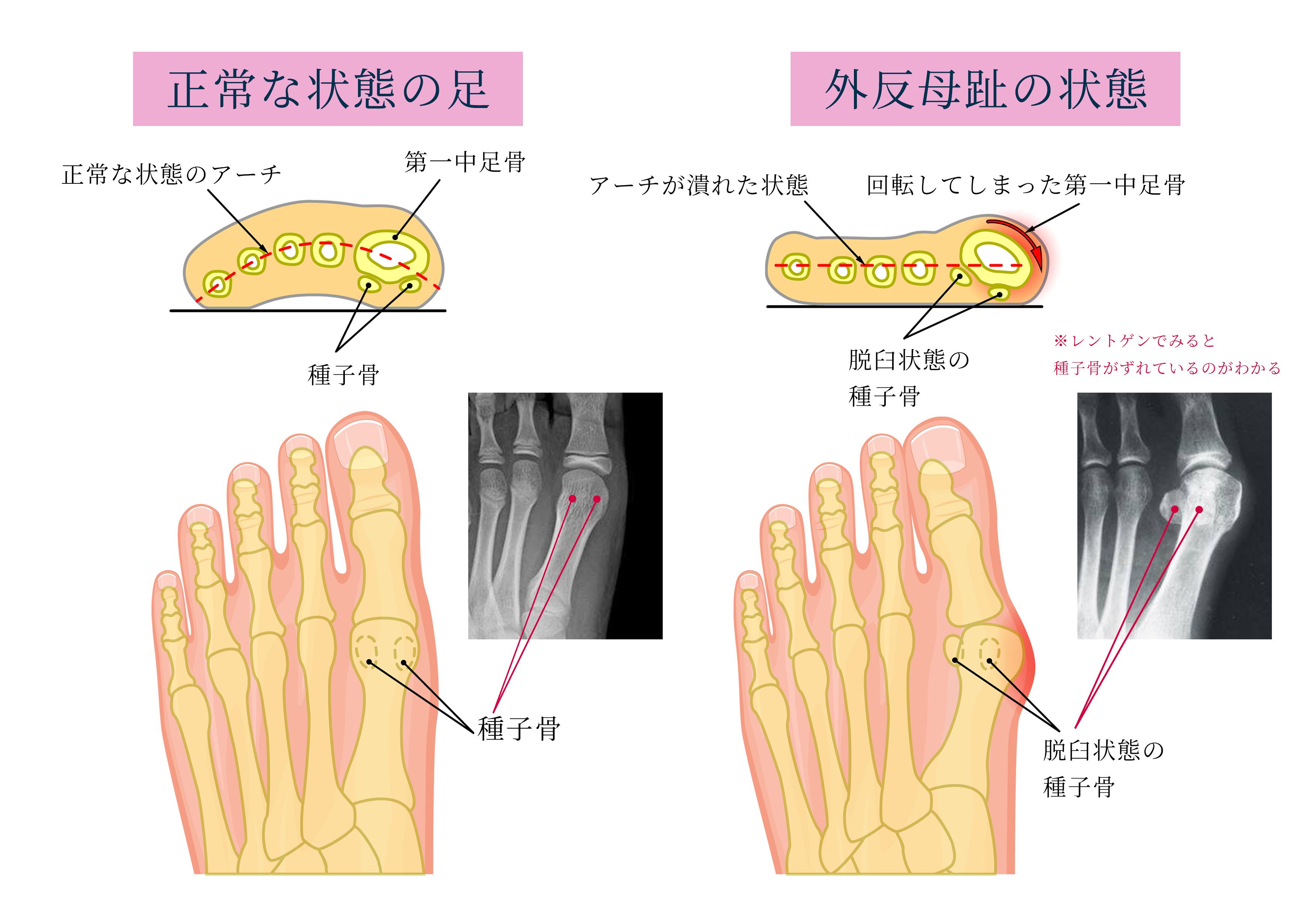 正常な状態の足と外反母趾の状態